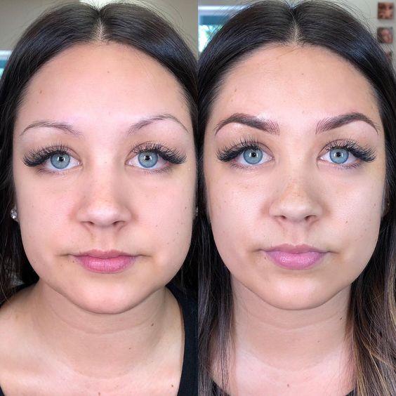 micropigmentação fio a fio antes e depois