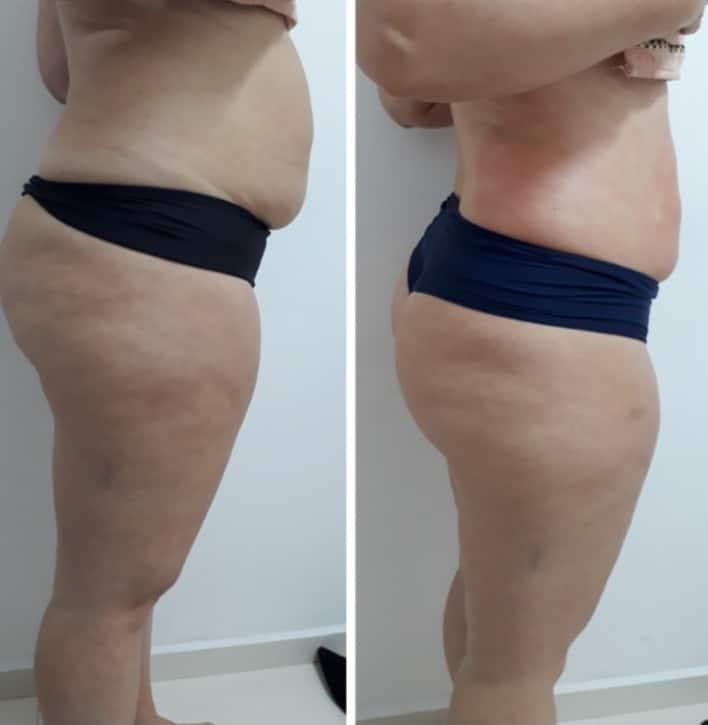 Massagem modeladora antes e depois