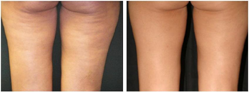 pernas antes e depois