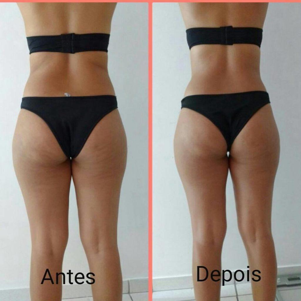Massagem antes e depois