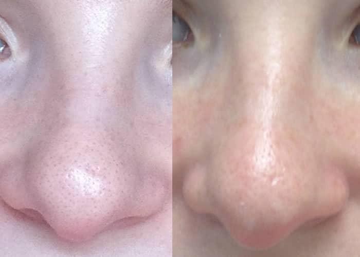 limpeza de pele profunda nariz