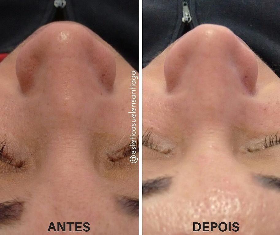 antes e depois limpeza de pele profunda